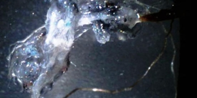 MORGELLONS NANO-MICO-FIBER  OPTIC PICTURES