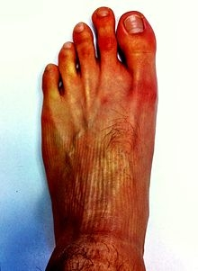 what some sirians feet would look like   Truth Control